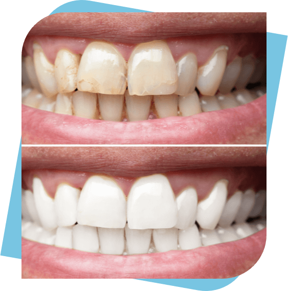 Before and After photo of man's cleaned and whitened teeth.